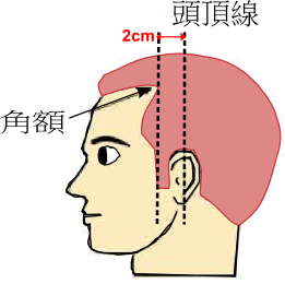 前頭部診断基準