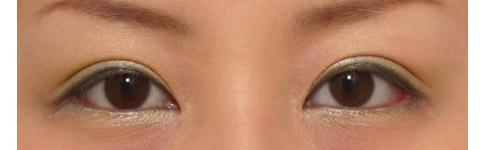 目頭切開と全切開をしました。目が寄りすぎないように蒙古襞を残しました。