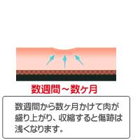 CO2レーザー