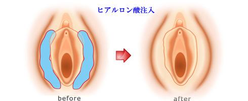 大陰唇ヒアルロン酸