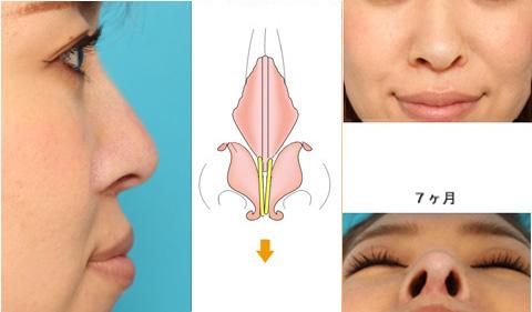 鼻尖や鼻柱の傾き・鼻孔の左右差