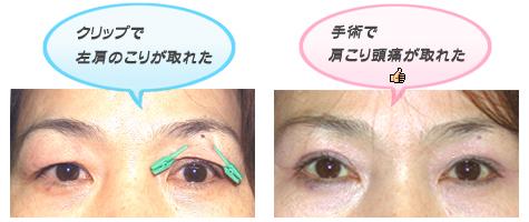 眼瞼下垂の手術によって頭痛や肩凝りが緩和