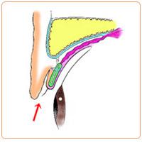 皮膚が余っているときの重瞼術