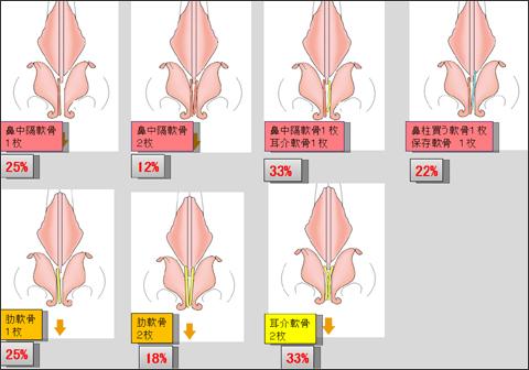鼻尖や鼻柱の傾き・鼻孔の左右差の発生頻度