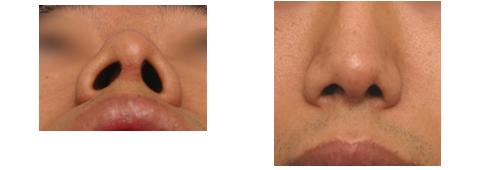 鼻中隔延長不足の原因