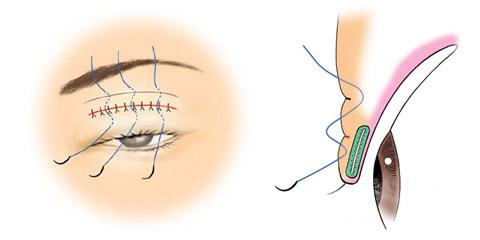 予定外重瞼線の治療