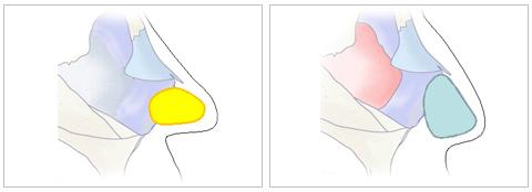 鼻中隔軟骨を使って再延長