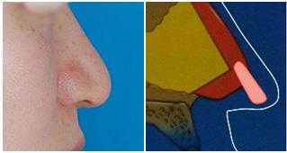 棒状の軟骨をしようすると鼻先だけが下へ伸びて、鼻柱の角度が下方に倒れてしまう