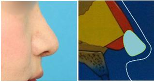 幅の広い板状の軟骨を使って、鼻先と鼻柱の両方を下へ伸ばす