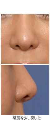 鼻背のラインに沿って延長した結果、鼻が大きくなる