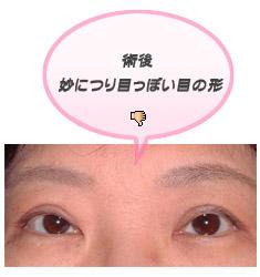 眼瞼下垂:妙なつり目