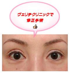 眼瞼下垂の手術後つり目になっていたのを修正