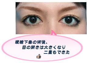 眼瞼下垂:もれなく二重まぶたになる