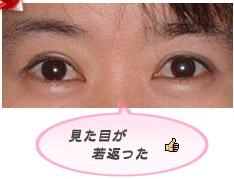 眼瞼下垂:見た目を若く見せる効果