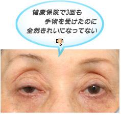 眼瞼下垂:健康保険がきく眼瞼下垂の手術