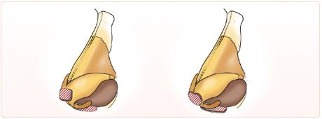 大鼻翼軟骨の先端に軟骨を積み重ねて、高さや形を整えます