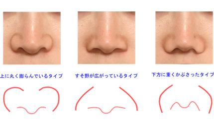 鼻翼は非常に複雑な立体構造をしています