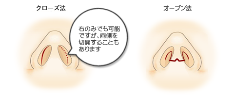 鼻短縮切開箇所