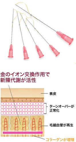アンチエイジング Antiaging ‐ 溶ける金の糸(レインボーリフト)