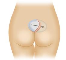 臀部プロテーゼ