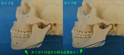 オトガイからほぼ下顎全体を削るイメージ