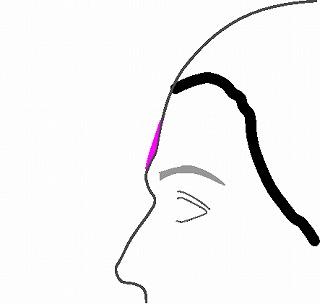 額の段差、凸凹を改善する