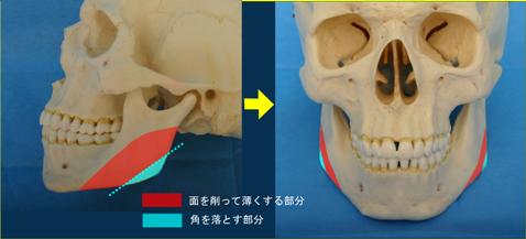 下顎角部に骨棘があり咬筋肥大を伴うもの