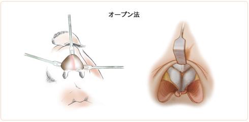 眉間プロテーゼの挿入方法