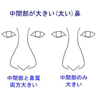 中間部が太い鼻