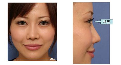 眉間プロテーゼの効果