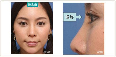 隆鼻術の結果