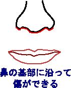 上口唇短縮術