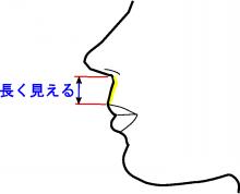 口唇拡大術