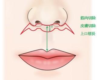 上口唇短縮