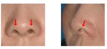 鼻孔縁形成