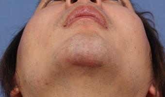 下顎プロテーゼ