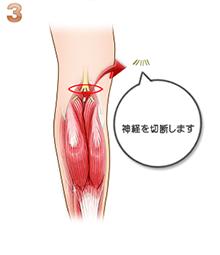 下腿筋萎縮