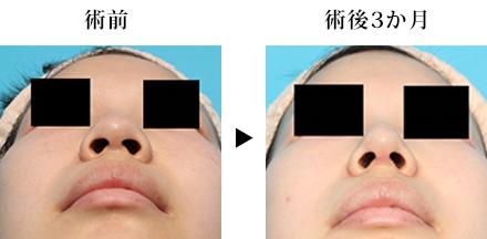 鼻尖縮小・鼻尖形成