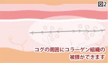 コラーゲン組織の被膜ができます
