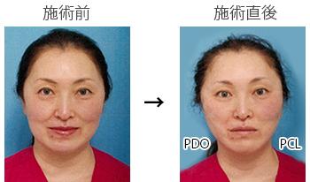 施術前後の比較