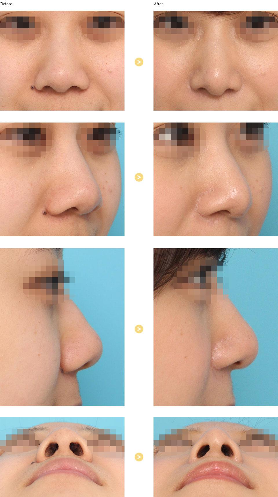 鼻翼縮小の症例