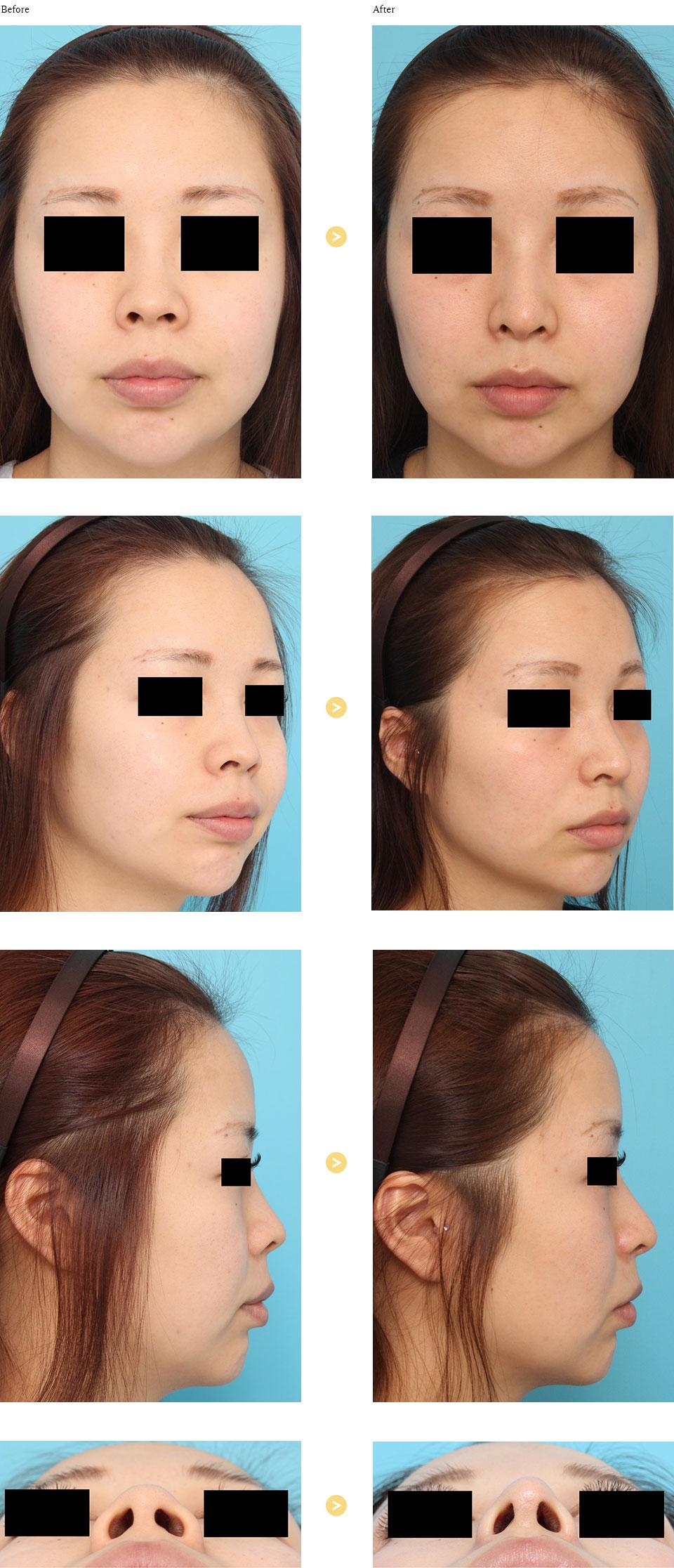 鼻中隔延長術+鼻翼縮小術(外側)