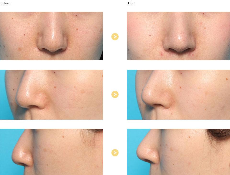 鼻尖形成の症例