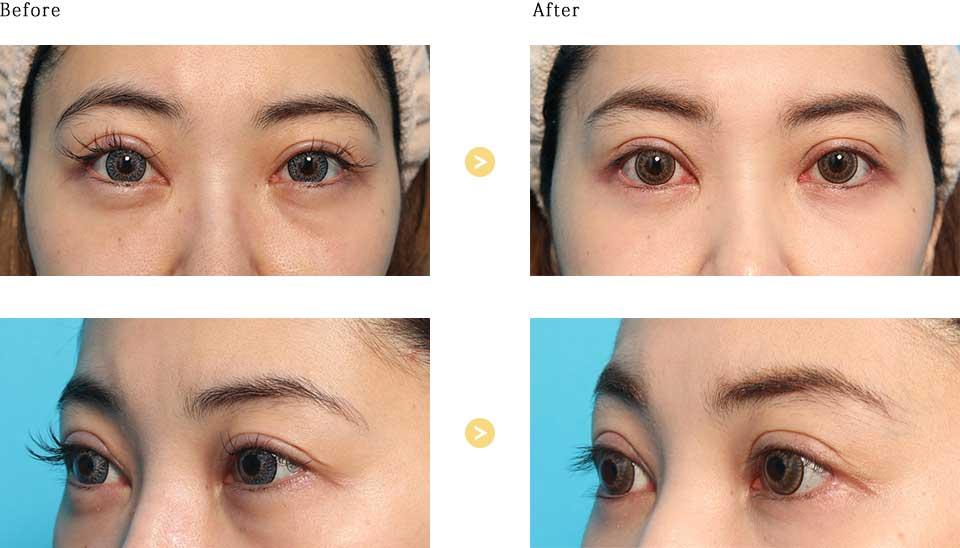 下眼瞼脱脂術の症例