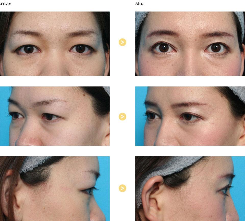 上眼瞼リフトの症例