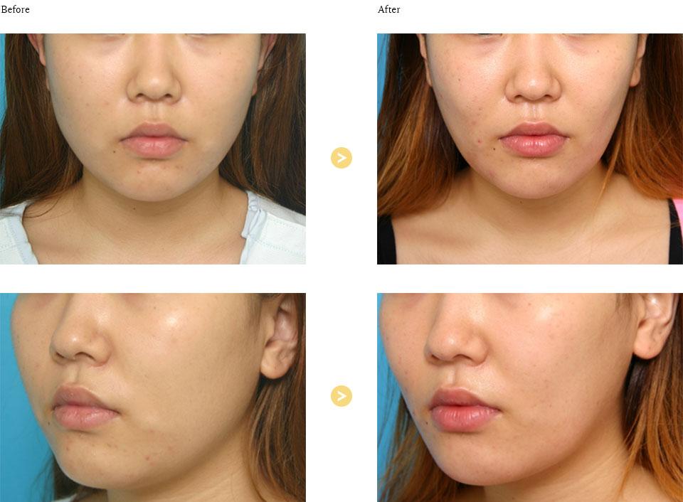 エラボトックス+脂肪融解注射(頬)の症例