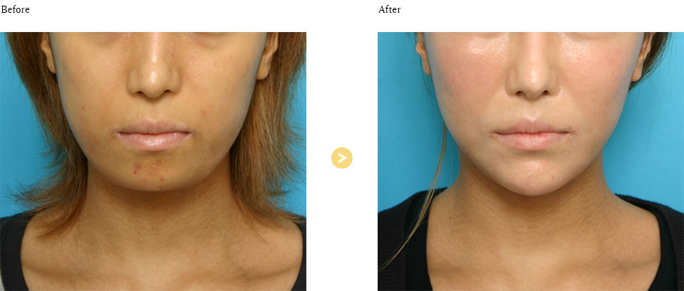 顎プロテーゼの症例