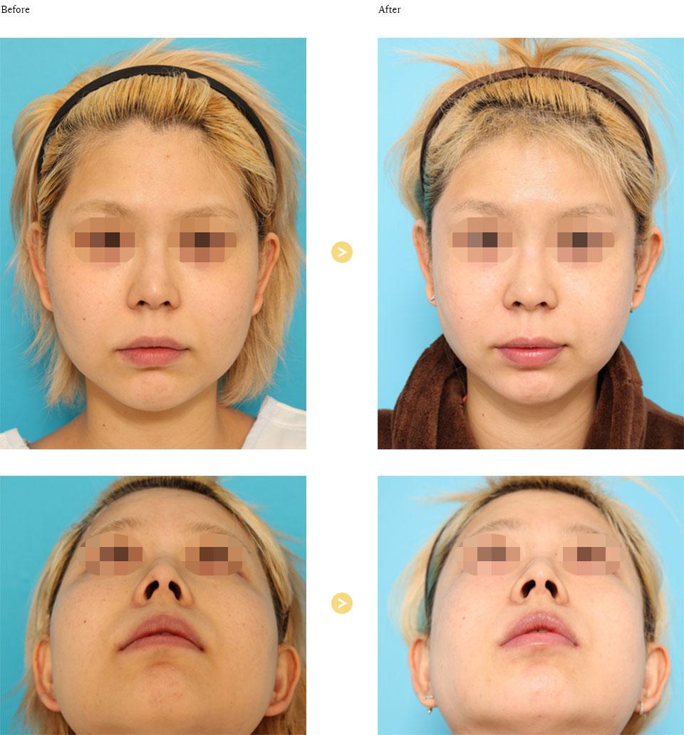 頬骨形成の症例