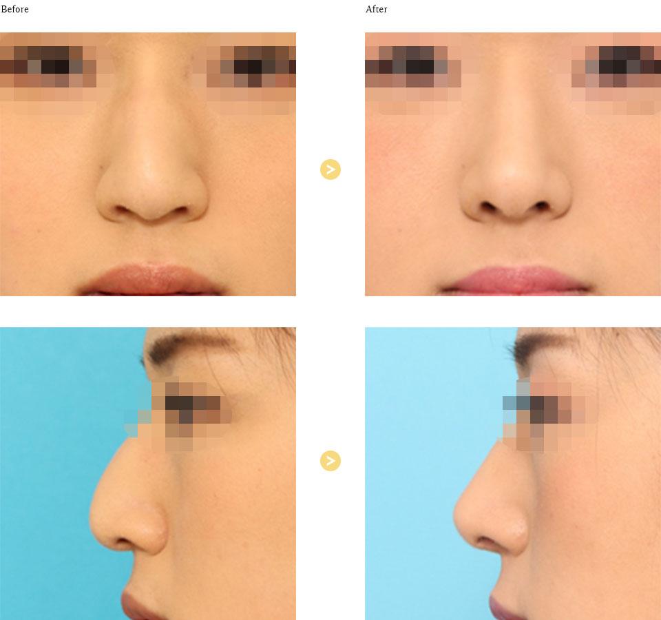 わし鼻形成の症例