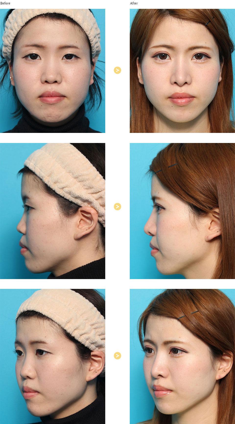 隆鼻術の症例